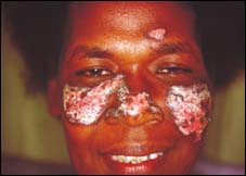 Dépigmentation de la peau : au-delà du complexe, des raisons…complexes