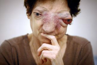 Chantal Sébire relance le débat sur l'euthanasie.